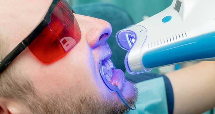Teeth Whitening by Laser